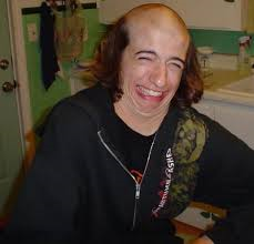 hair loss Denver